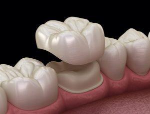 مشکلات روکش موقت دندان