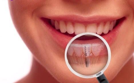 دوام و طول عمر ایمپلنت دندان
