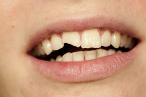 لب پر شدن دندان، شکستگی یا ترک خوردن دندان